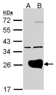 RAB1A Antibody (PA5-27421)