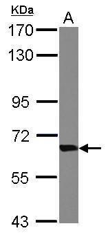 TKT Antibody (PA5-27428) in Western Blot