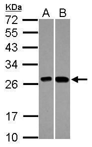 KNP-I Antibody (PA5-27430) in Western Blot