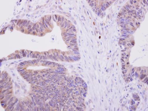 H6PD Antibody (PA5-27439) in Immunohistochemistry (Paraffin)