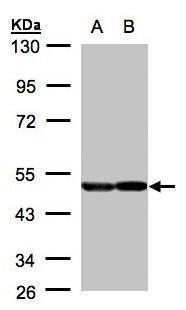 NSE Antibody (PA5-27452) in Western Blot