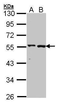 GPT Antibody (PA5-27453) in Western Blot
