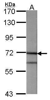 Annexin A6 Antibody (PA5-27462) in Western Blot