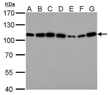 alpha Actinin 4 Antibody (PA5-27475) in Western Blot
