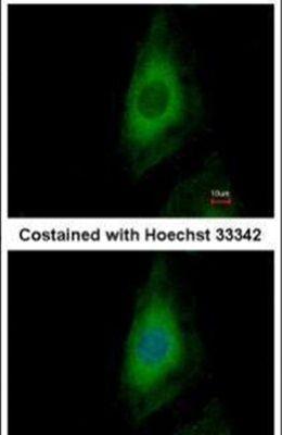 PP2A beta Antibody (PA5-27483)