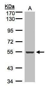 ILK Antibody (PA5-27484) in Western Blot
