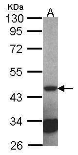 Septin 2 Antibody (PA5-27485) in Western Blot