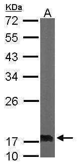 NME2 Antibody (PA5-27488) in Western Blot