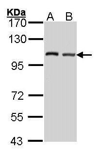 DAP5 Antibody (PA5-27489) in Western Blot