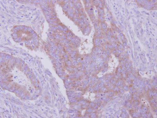 HGS Antibody (PA5-27491) in Immunohistochemistry (Paraffin)