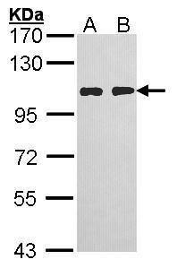 HGS Antibody (PA5-27491) in Western Blot