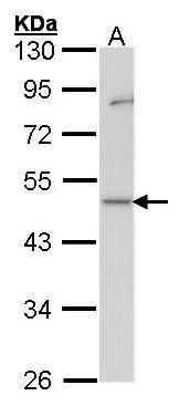 GDI1 Antibody (PA5-27498) in Western Blot