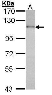 HGS Antibody (PA5-27502) in Western Blot