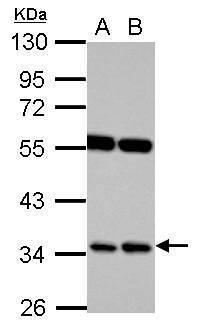RASSF7 Antibody (PA5-27503)