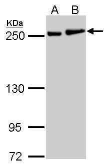 MYH9 Antibody (PA5-27506) in Western Blot