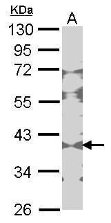 Creatine Kinase BB Antibody (PA5-27509) in Western Blot