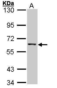 IMPDH2 Antibody (PA5-27519) in Western Blot