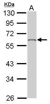 hnRNP K Antibody (PA5-27522) in Western Blot