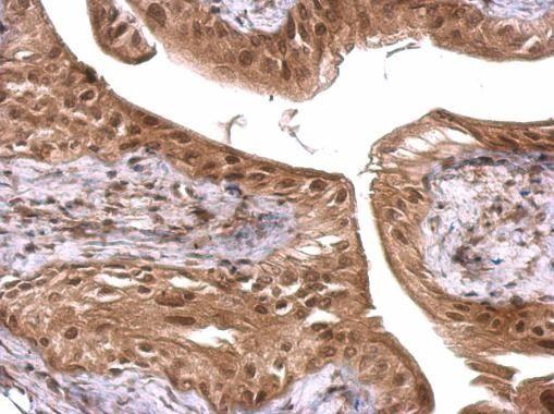 FUS Antibody (PA5-27531)