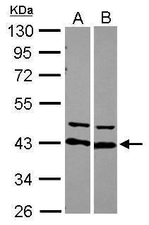 hnRNP D Antibody (PA5-27534)