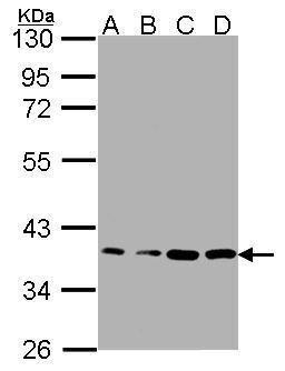 RPL5 Antibody (PA5-27539) in Western Blot