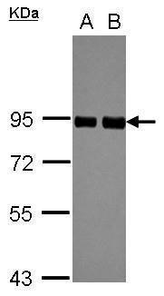 PRKCSH Antibody (PA5-27551) in Western Blot