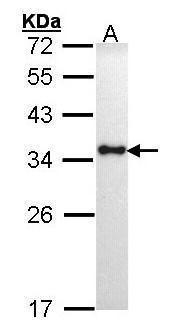 HLA-DR Antibody (PA5-27553) in Western Blot
