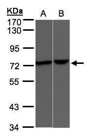 TRPV2 Antibody (PA5-27555) in Western Blot