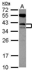 CD79b Antibody (PA5-27557) in Western Blot