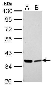 Annexin A2 Antibody (PA5-27566) in Western Blot