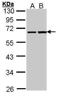 PHF1 Antibody (PA5-27568) in Western Blot