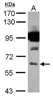 VGAT Antibody (PA5-27569) in Western Blot
