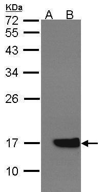 Cytochrome B5 Antibody (PA5-27570)