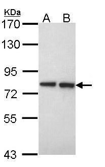 EXT2 Antibody (PA5-27574) in Western Blot