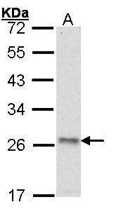 ATP Synthase O Antibody (PA5-27575) in Western Blot