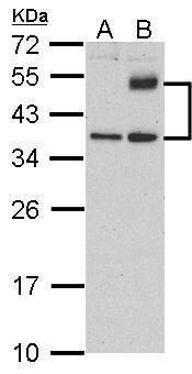 ATF4 Antibody (PA5-27576) in Western Blot