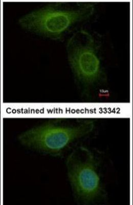 PHGDH Antibody (PA5-27578) in Immunofluorescence