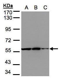 PHGDH Antibody (PA5-27578) in Western Blot