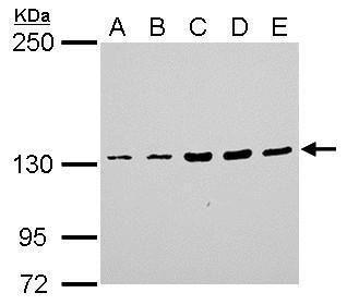 JAK1 Antibody (PA5-27583) in Western Blot