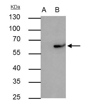 RAP1 Antibody (PA5-27588) in Immunoprecipitation