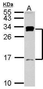 C1D Antibody (PA5-27595) in Western Blot