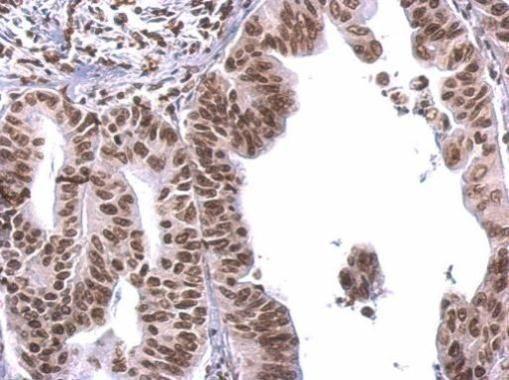 COBRA1 Antibody (PA5-27602) in Immunohistochemistry (Paraffin)
