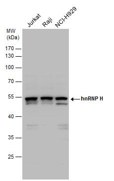 hnRNP H1 Antibody (PA5-27610) in Western Blot