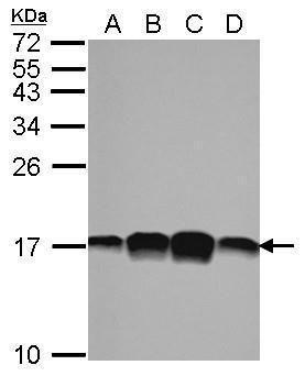 Profilin 1 Antibody (PA5-27612) in Western Blot