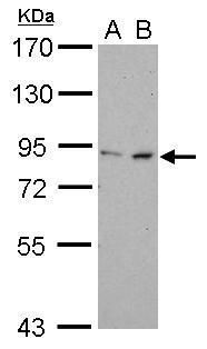 FOXM1 Antibody (PA5-27622) in Western Blot