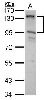 CIZ1 Antibody (PA5-27625) in Western Blot