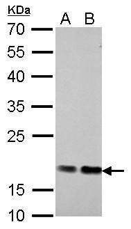 Cofilin Antibody (PA5-27627) in Western Blot