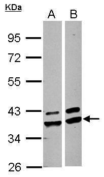 AKR1A1 Antibody (PA5-27628)