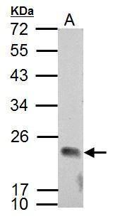 APOBEC3C Antibody (PA5-27629)