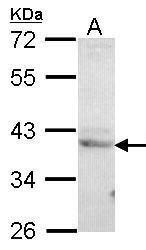 LZIP Antibody (PA5-27630) in Western Blot